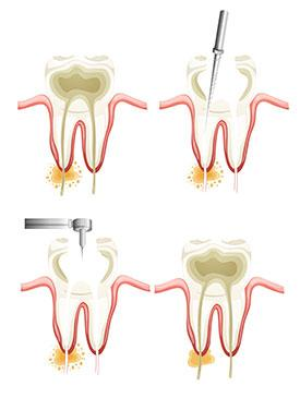 Root Canals | Dr. Toccafondi | Hastings-on-Hudson, NY Dentist