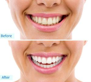 Teeth Whitening | Dr. Toccafondi | Hastings-on-Hudson, NY Dentist